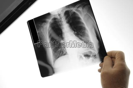 laege holder en x ray billede
