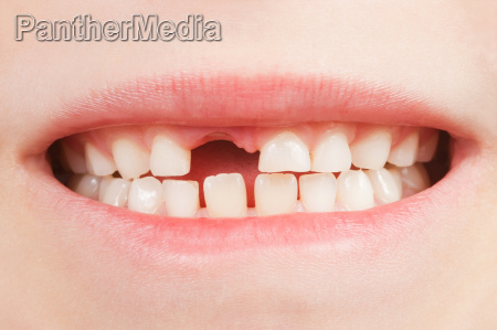 barn med tandhul