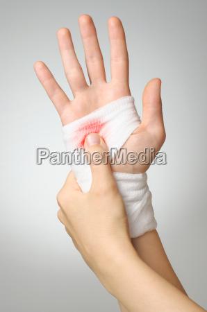 kvinde hand medicinske medicinsk kvindelig closeup