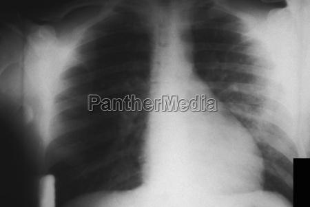 makrooptagelse naerbillede sv bryst brystkasse thorax