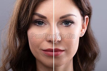 kvindens ansigt for og efter kosmetisk