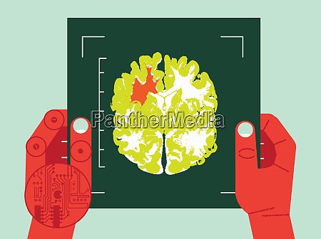 human and robotic hands holding brain